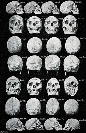 Female criminal skulls